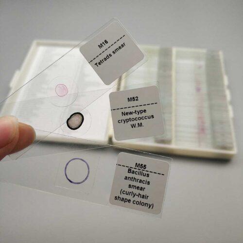 new-cryptococcus prepared slides