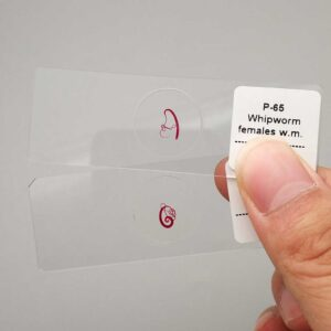 prepared microscope slides Trichuris trichiura