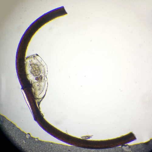 head louse egg w.m. attached on human hair