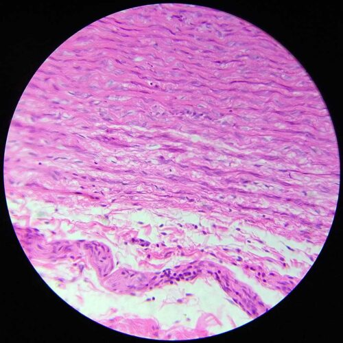 Human aorta large artery section prepared slides