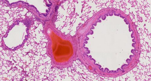 Human lung section histology slides, 7 µm sec., H&E Stain