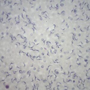 Trypanosoma-blood-smear