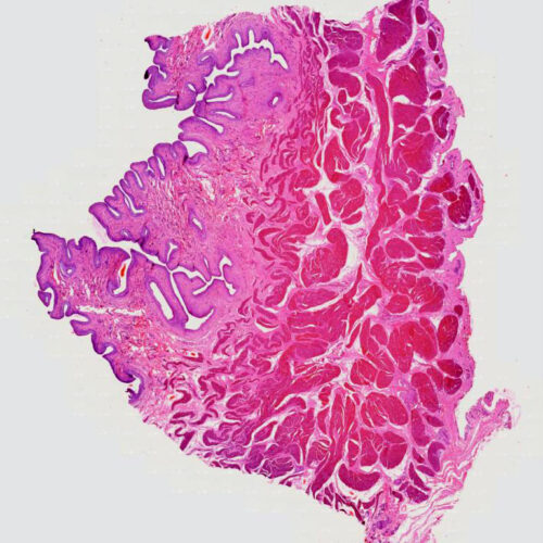 human bladder