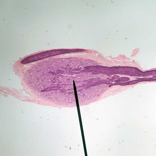 spinal ganglion