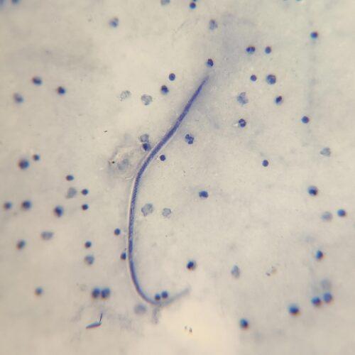 Wuchereria bancrofti microfilariae prepared slides