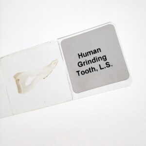 human grinding tooth l.s.