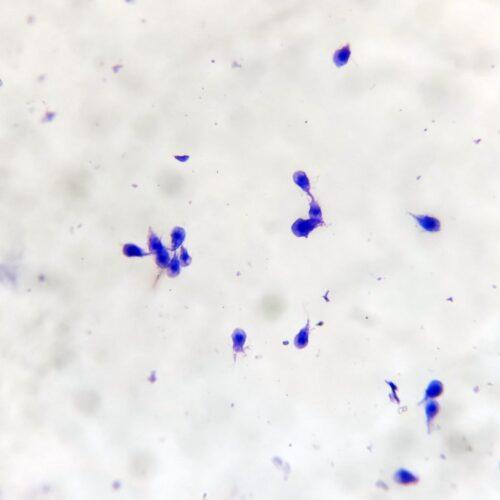 Giardia lamblia intestinalis, smear with trophozoites