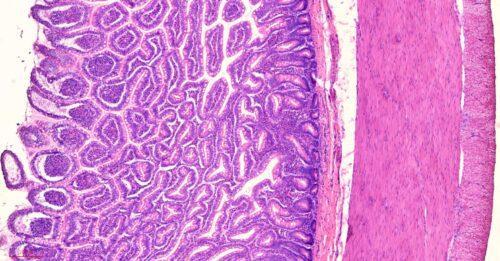Human ileum cross-section histology slides, 7 µm sec., H&E Stain